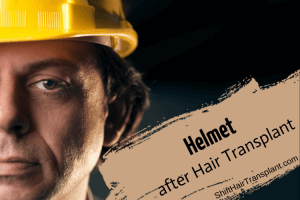 Helmet after Hair Transplant, a worker with a yellow helmet on a black background.