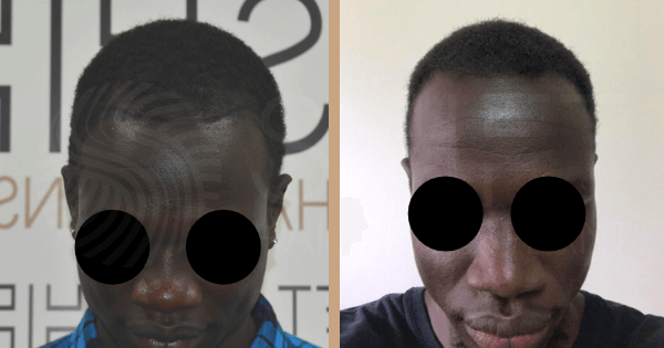 Antes y después del trasplante del cabello afro en Estambul con SHIFT Turquía (6)
