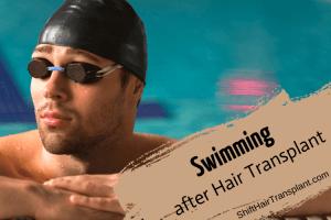 Swimming after Hair Transplant blog main image.