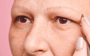 Eyebrow Transplant 9