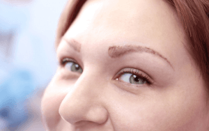 Eyebrow Transplant 10