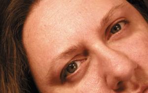 Eyebrow Transplant 8