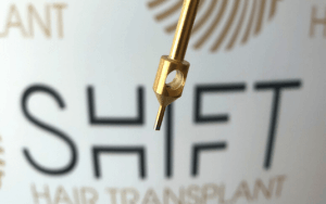 Gold Hair Transplant by SHIFT 3