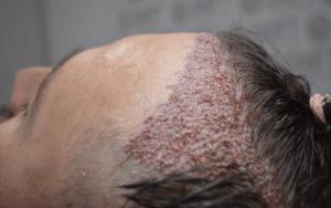 FUT Hair Transplant 4