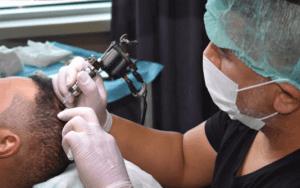 Scalp Micropigmentation by SHIFT Hair Transplant 3