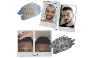 Afro Hair Transplant in Turkey by SHIFT Istanbul 3