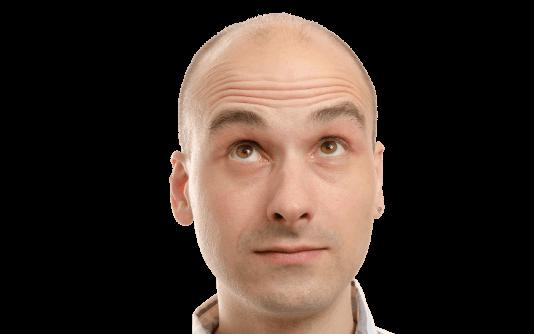 Männer Haartransplantation 181