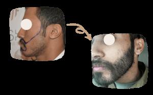 Beard Transplant in Turkey by SHIFT Clinic 3