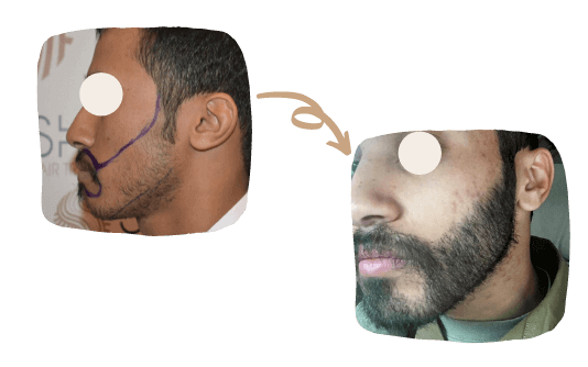 Beard Transplant 2