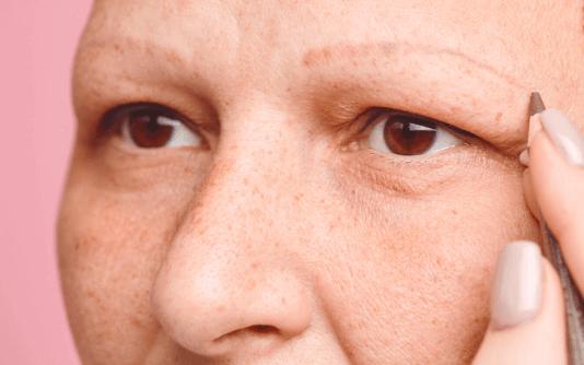 Augenbrauentransplantation 8
