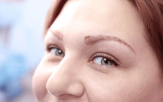 Augenbrauentransplantation 9