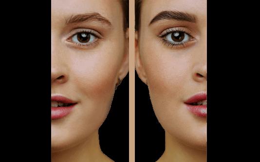 Augenbrauentransplantation 13