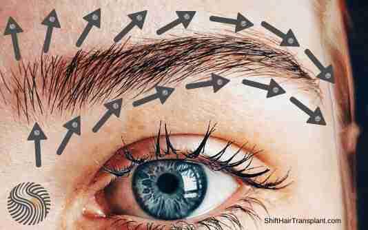 Eyebrow Transplant 4