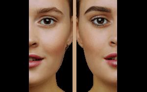 Eyebrow Transplant by SHIFT Hair Transplant Clinic Turkey 3