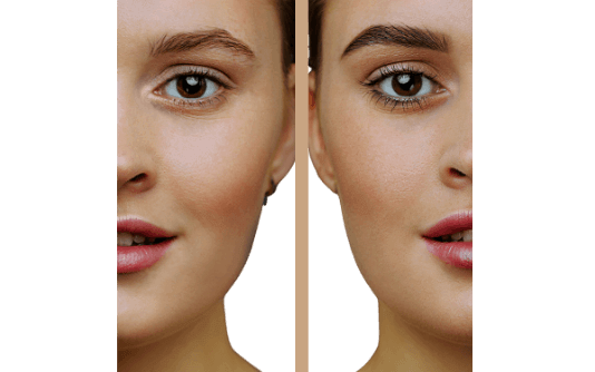 Eyebrow Transplant 13
