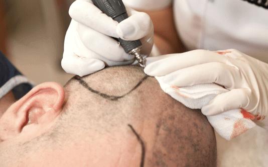 FUE Haartransplantation 2