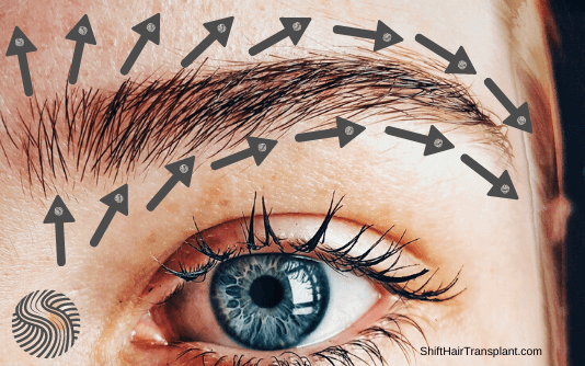 Augenbrauentransplantation 4