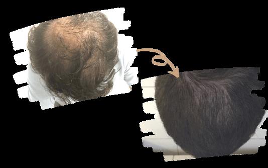 Hair PRP 2