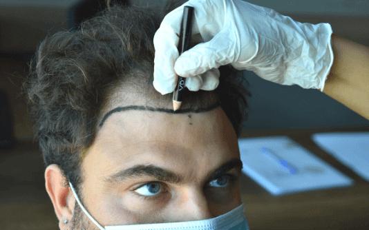 Männer Haartransplantation 8
