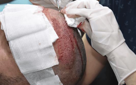 Mikro FUE Haartransplantation 2
