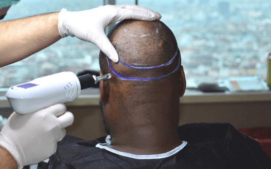 Nadelfreie Haartransplantation 4