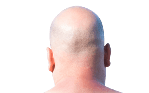 Scalp Micropigmentation 8