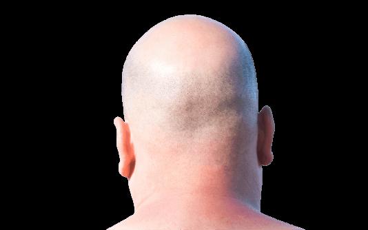 Scalp Micropigmentation 7