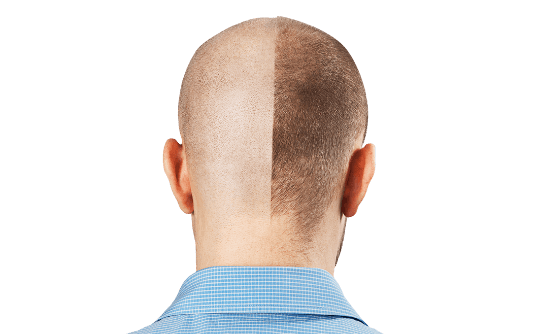 Scalp Micropigmentation 6