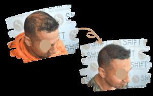 Scalp Micropigmentation in Turkey by SHIFT Clinic 3