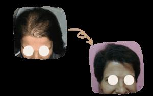 Women Hair Transplant in Turkey by SHIFT Istanbul 3