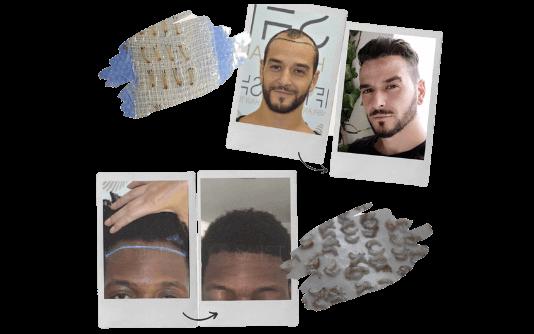 Transplante de cabelo Afro 16