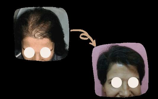 Transplante de cabelo para mulheres 2