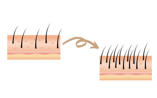 Mesoterapia capilar 3