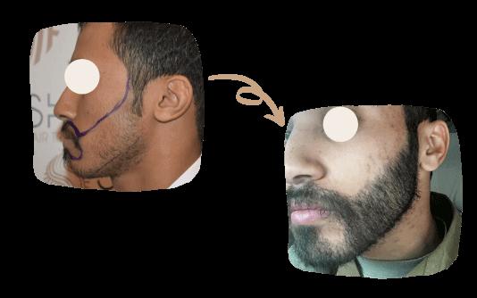 Trasplante de barba 1