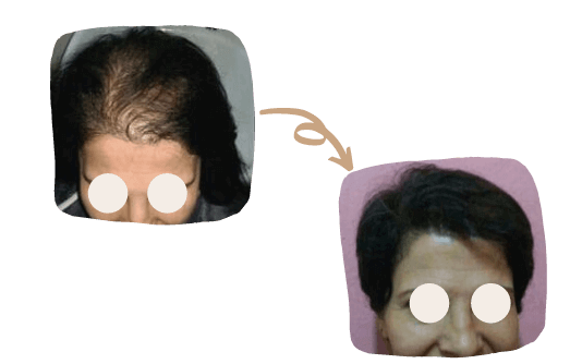 Greffe de Cheveux pour Femmes 1
