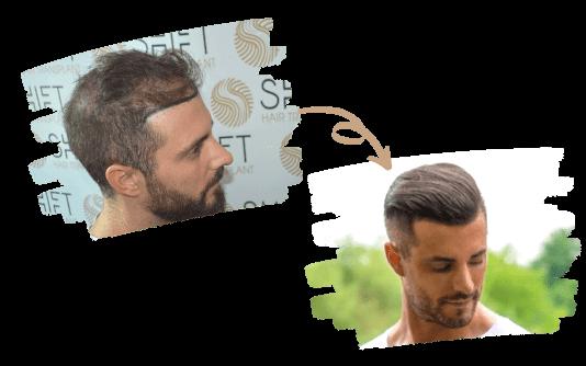 Greffe de cheveux pour hommes 2