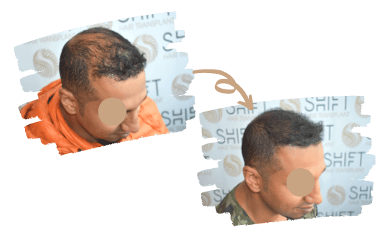 Micropigmentation du cuir chevelu 1