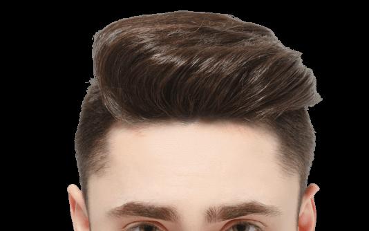Trapianto di capelli percutaneo 5
