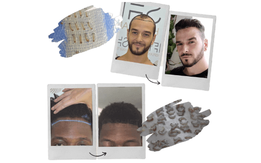 Trasplante de cabello Afro 16
