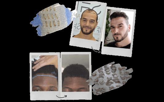 Greffe de cheveux Afro 7