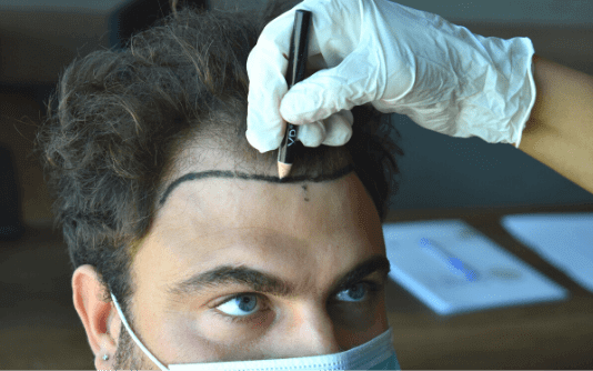 Greffe de cheveux pour hommes 18