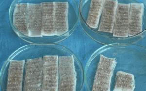 Trasplante capilar DHI 13