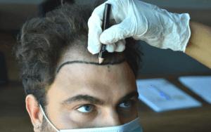 Greffe de cheveux DHI 9