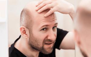 Greffe de Cheveux FUE 16