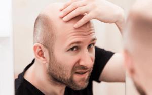 Greffe de cheveux DHI 12