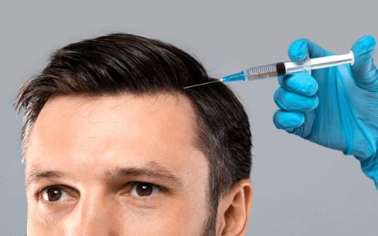 Mesoterapia Capillare 8