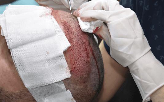 Micro FUE Trasplante capilar 2