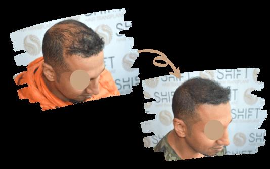 Micropigmentação do Couro Cabeludo 1