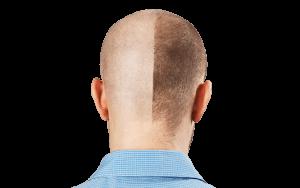 Micropigmentação do Couro Cabeludo 7