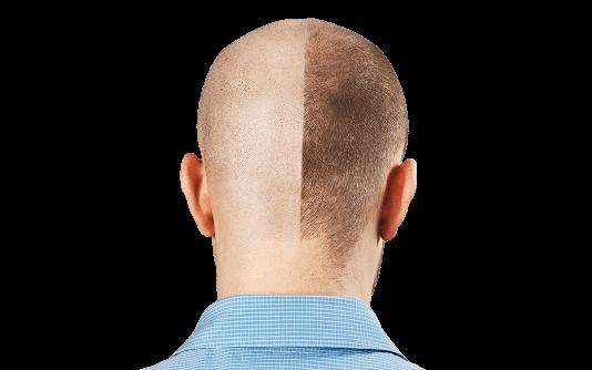 Micropigmentação do Couro Cabeludo 6